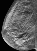 Digital Breast Tomosynthesis: Imaging and Implementation