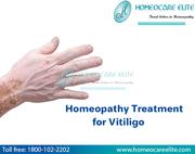 Best Homeopathic Remedies To Treat Vitiligo
