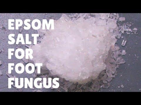 Foot Fungus Miracle Treatment : Epsom Salt