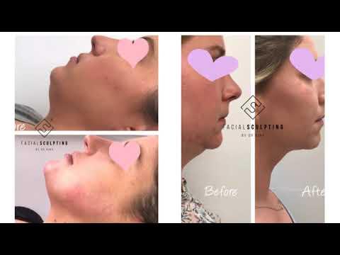 Best Botox London Prices | 07340093939 | facialsculpting.co.uk
