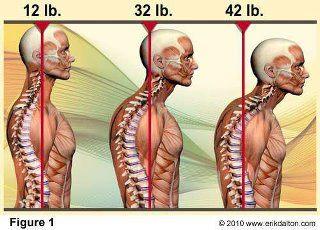 Pensez à vous tenir droit. Quand la tête avance d'un seul centimètre, on ajoute 2 kilos de plus sur la colonne cervicale.
