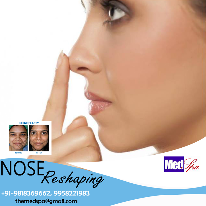 What is the price of nose job in Delhi?