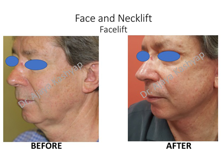Who is the best neck lift surgeon in Delhi, India?