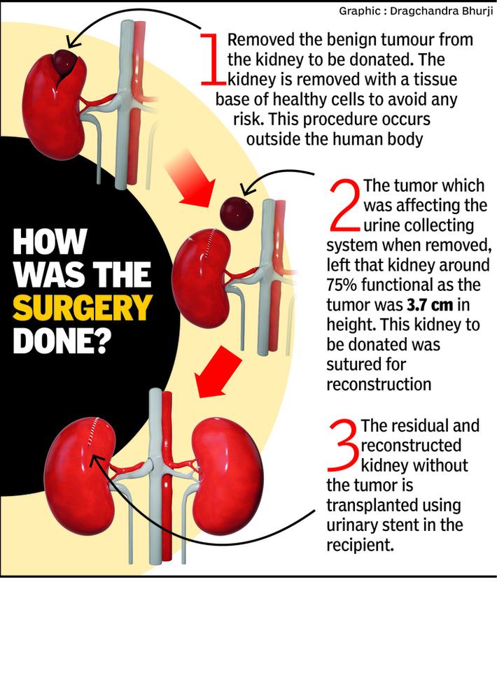 Kidney Transplant Info
