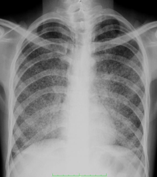 Miliary Tuberculosis