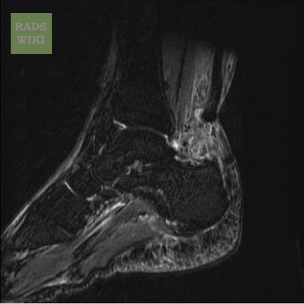 ACHILLES TENDON RUPTURE - MRI