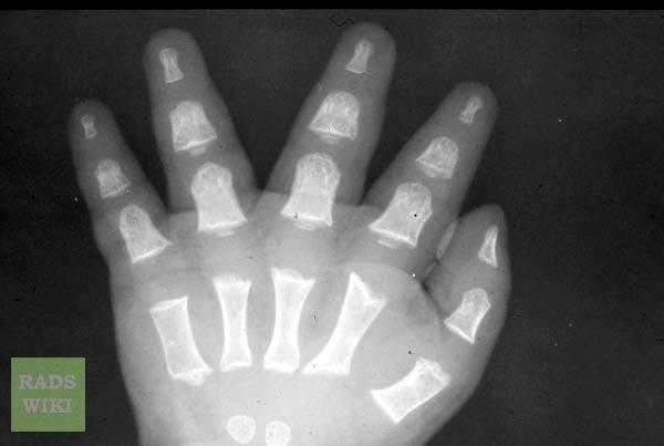 ACHONDROPLASIA Radiograph