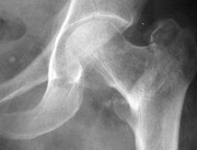 Intertrochanteric Fracture