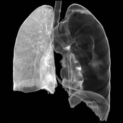Compressive pneumothorax