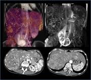 Liver CT