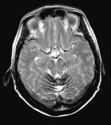 Leptomeningeal Haemosiderosis