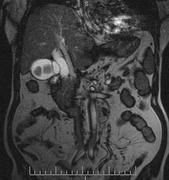 Cholecysto-choldocho-lithiasis 1