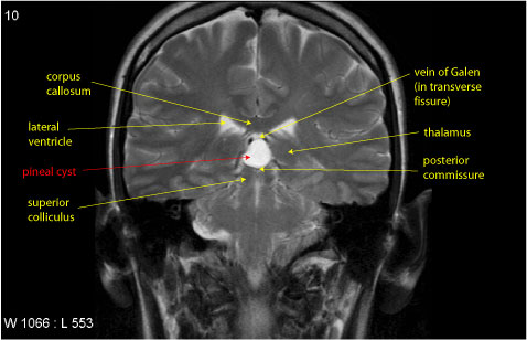 Pineal Cyst Case Vignette
