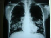 pulmunary amyloidosis 1