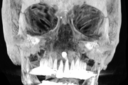 Inverted Supernumerary Tooth