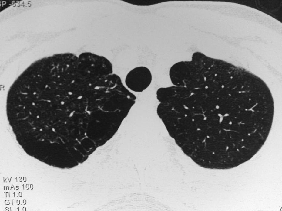 Paraseptal and centrilobular emphysema