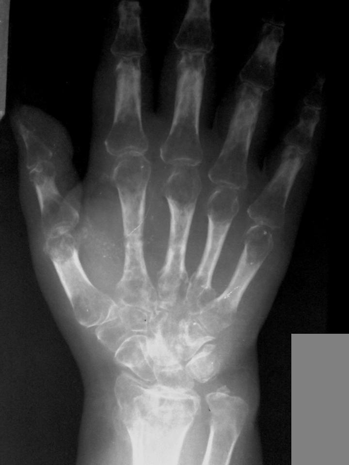 Sudeck's Atrophy (Reflex Sympathetic Dystrophy Syndrome)