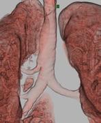 Tracheal bronchus