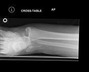 Ankle Fracture and Dislocation