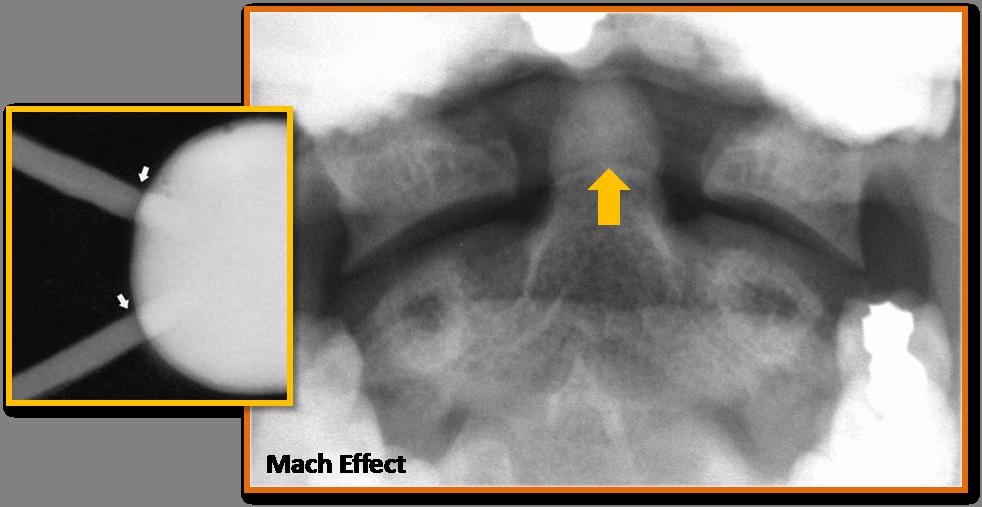 Mach Effect 2