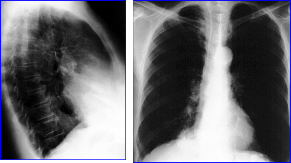 A mass on the lung basis Simulating hiatus hernia