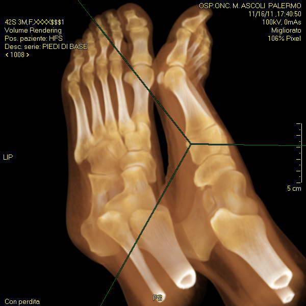 Foot MDCT
