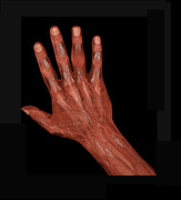 MDCT HAND after traumas