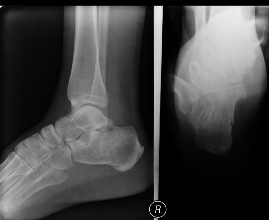 fracture calcaneum