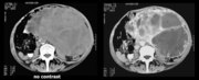 Mesenteric Castleman disease
