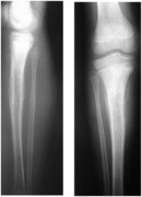 Bone lymphoma
