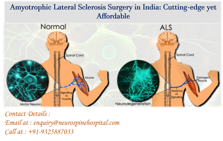 Surgeons Are Available In India For Amyotrophic Lateral Sclerosis Surgery