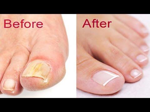 How to Get Rid of  Toenail Fungus At Home   Natural remedies for toenail fungus