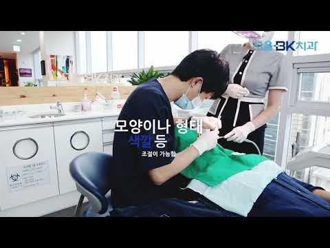 [대전라미네이트][치아성형] 서울BK치과