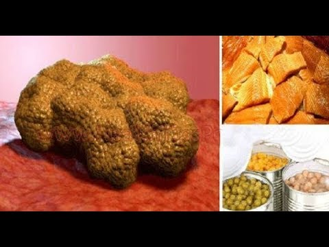 R.A.N Tip of The Week! These Foods Make Cancer Cells Grow In Your Body