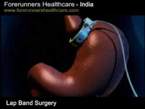 Quick assured weight loss: Lap-band surgery in India