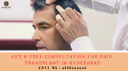 FREE CONSULTATION FOR HAIR TRANSPLANT IN HYDERABAD