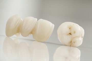 Z-Systems ZIRCONIA IMPLANTS ! THE BEST !