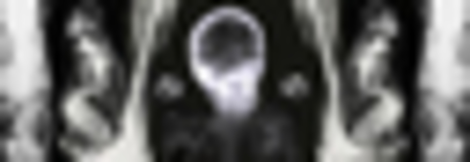 Death As An Evolutionary Force