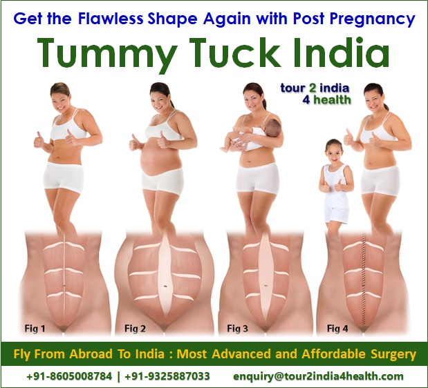Get the Flawless Shape Again with Post Pregnancy Tummy Tuck India