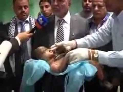 Israel's War Crimes: Completely Burnt Palestinian Child (14/11/2012)