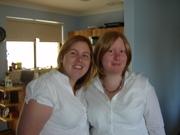alopecia twin