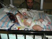 Evan Tumor Operation
