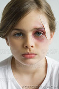 girl-with-black-eye