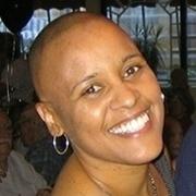 Newly Diagnosed with Alopecia