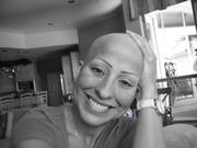 Latinos with Alopecia