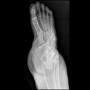 LOWER EXTREMITIES-Foot AP_OBL-10_06_2009-04_54_40 PM-578