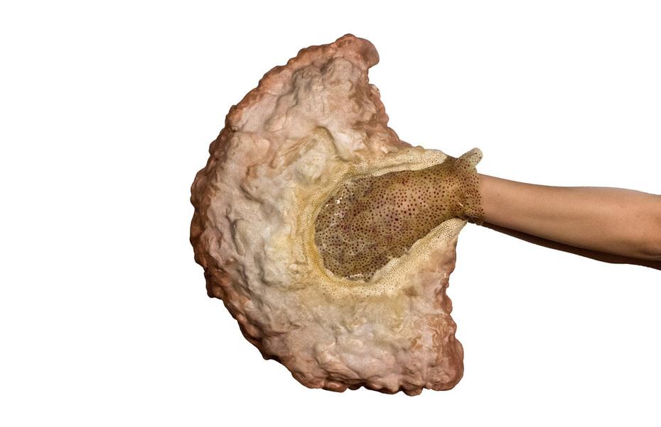 Apcsessus Impotentia Sensusitis