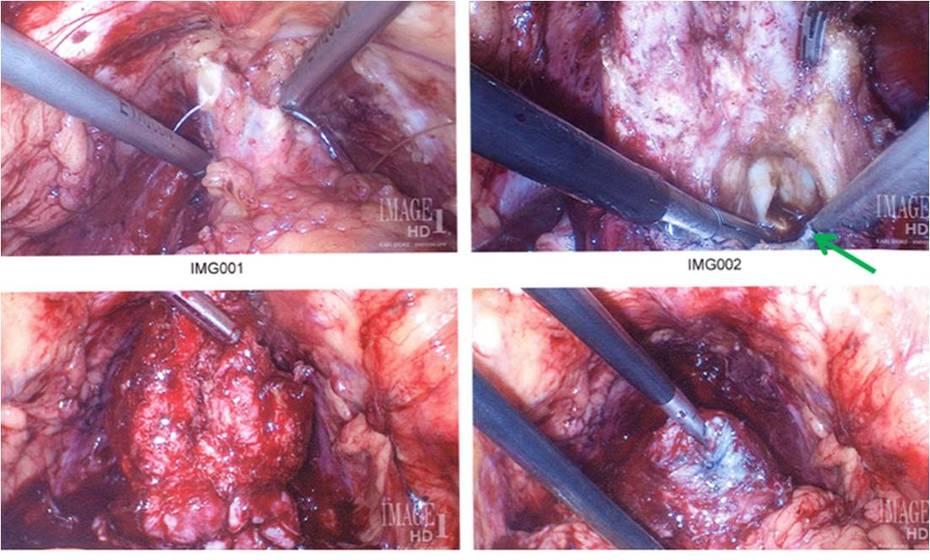 Dr Krongrad intraoperative photos: old hemorrhage in prostatitis patient