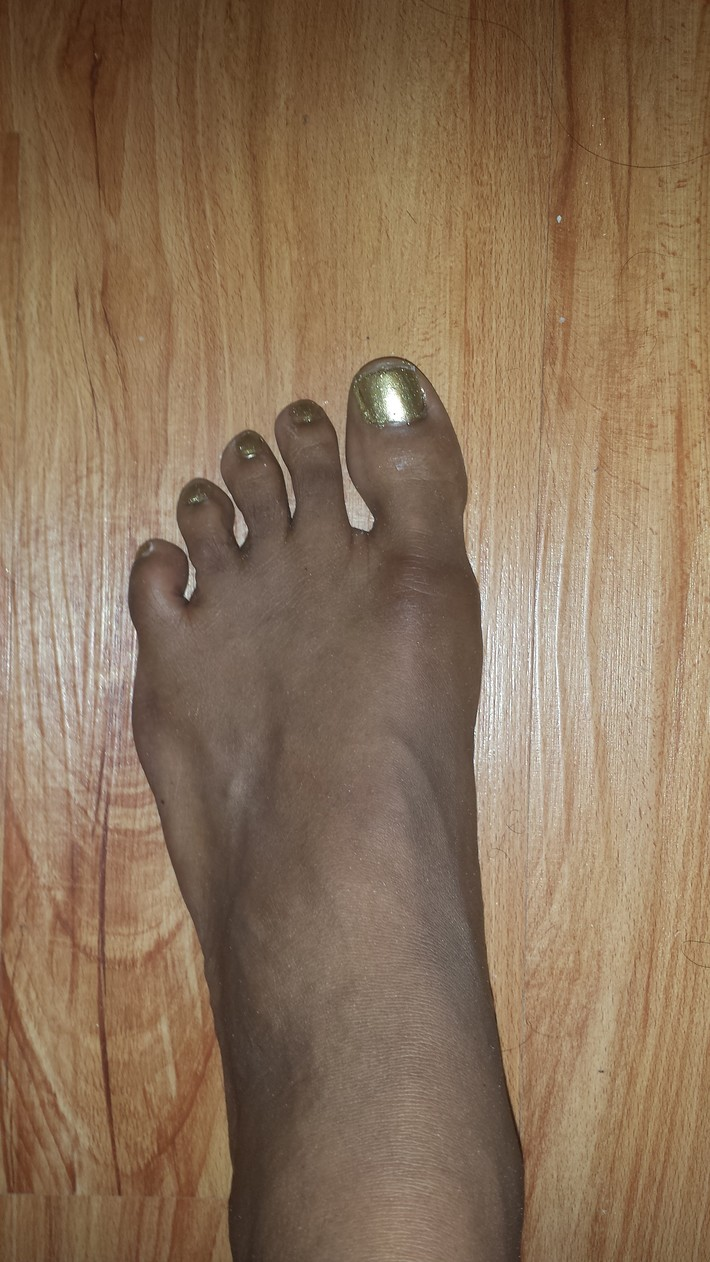 Golden Feet