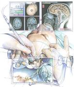 Neurosurgery-TBI